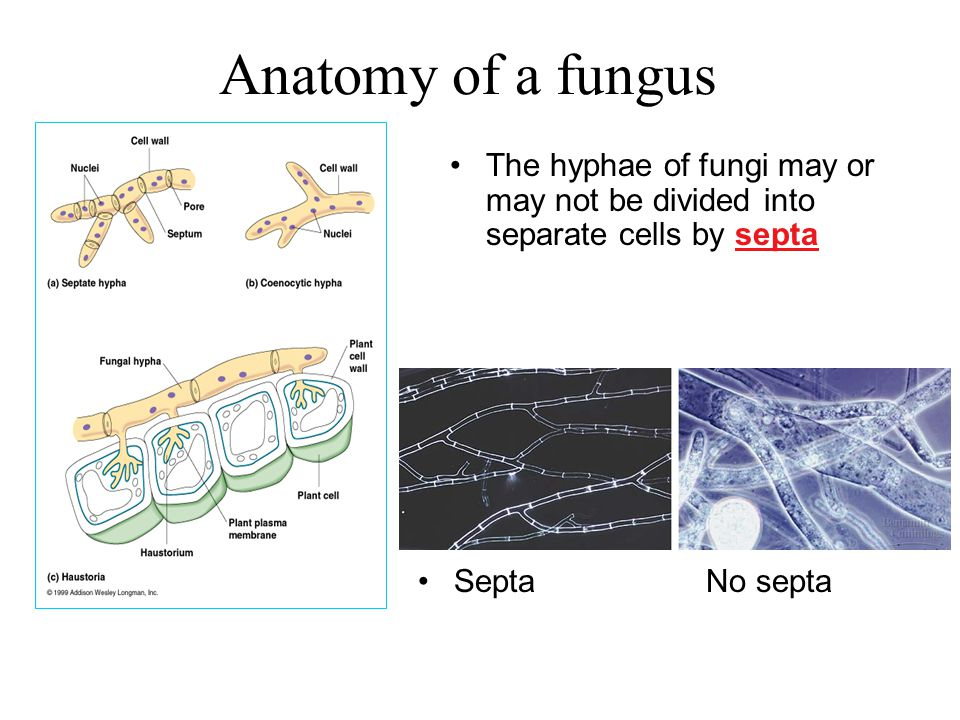 Anatomy of a fungus The hyphae of fungi may or may not be divided into separate cells by septa.