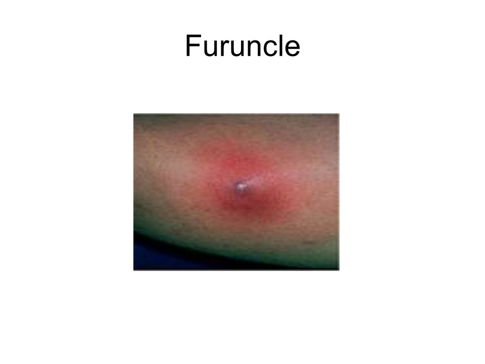 Furuncle
