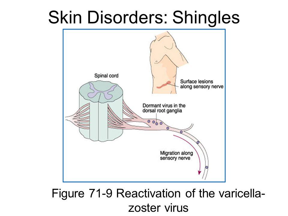 Skin Disorders: Shingles