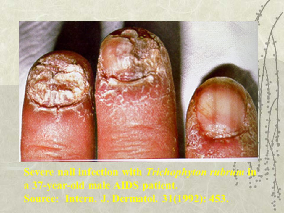 Severe nail infection with Trichophyton rubrum in