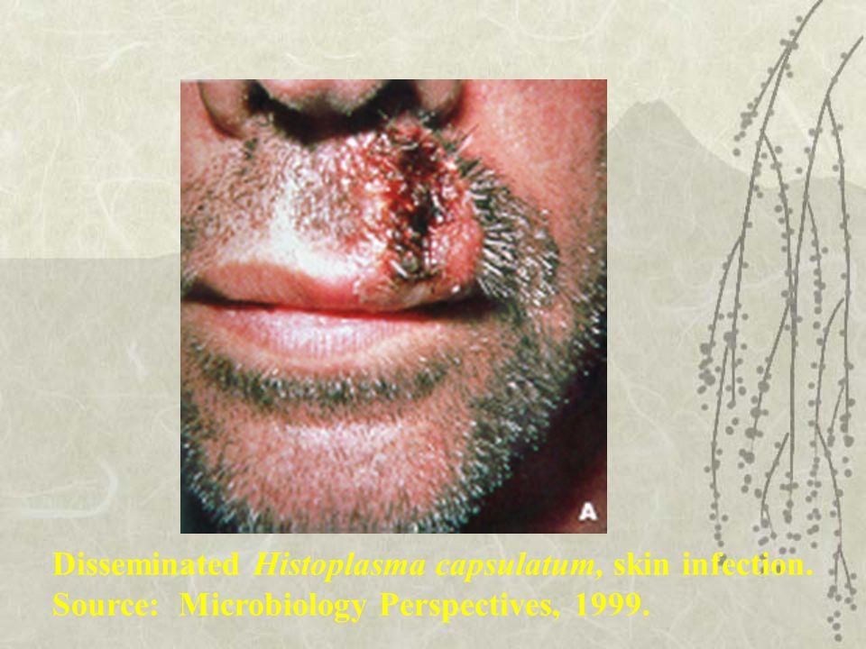 Disseminated Histoplasma capsulatum, skin infection.