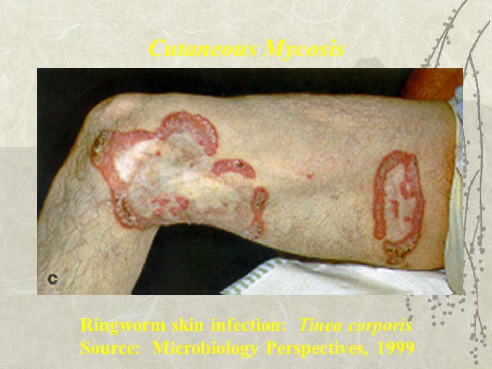 Cutaneous Mycosis Ringworm skin infection: Tinea corporis