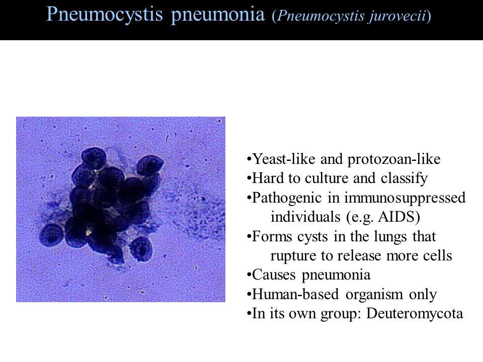 Pneumocystis pneumonia (Pneumocystis jurovecii)