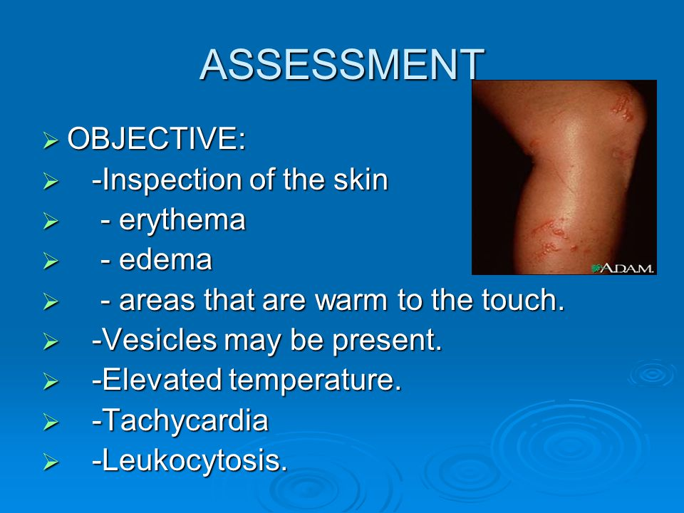 ASSESSMENT OBJECTIVE: -Inspection of the skin - erythema - edema