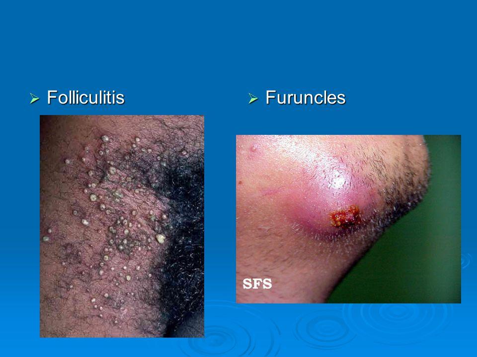 Folliculitis Furuncles