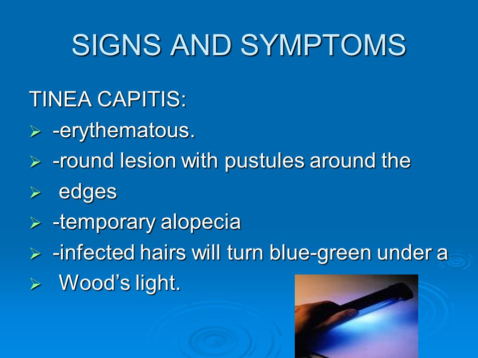 SIGNS AND SYMPTOMS TINEA CAPITIS: -erythematous.