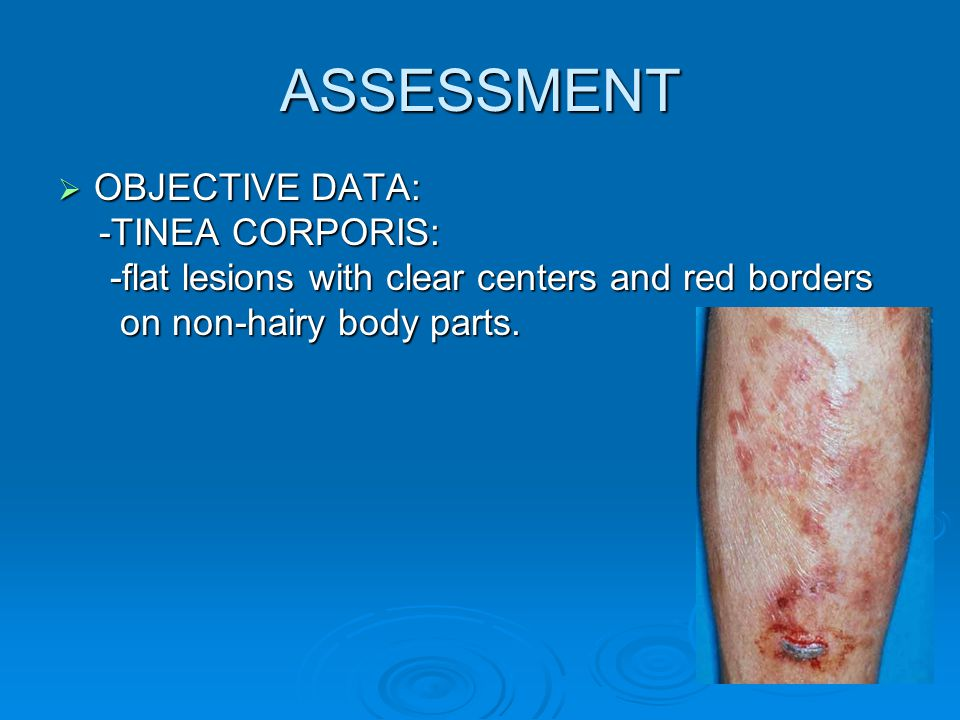 ASSESSMENT OBJECTIVE DATA: -TINEA CORPORIS: