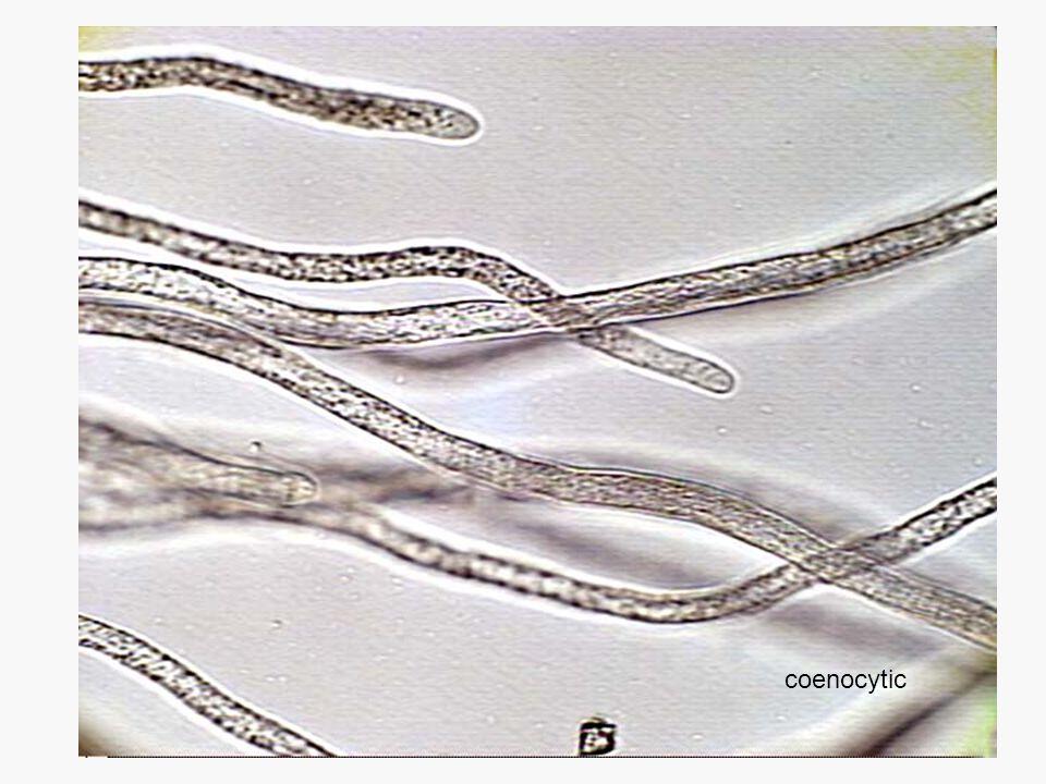 coenocytic
