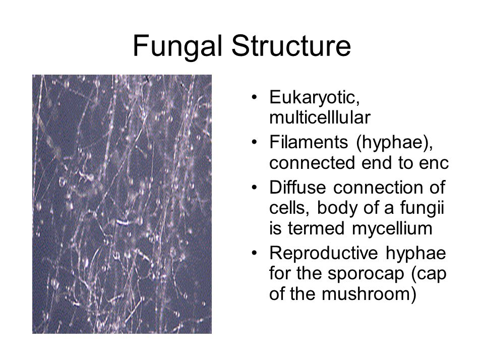 Fungal Structure Eukaryotic, multicelllular