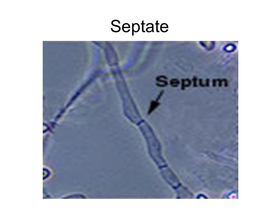 Septate