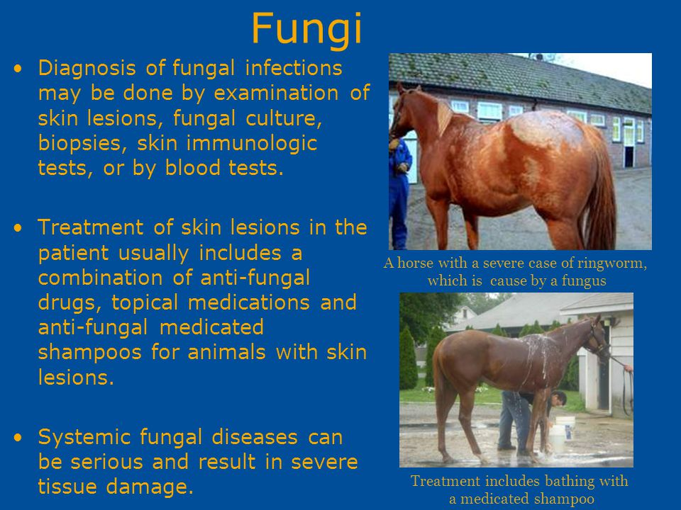 Fungi Diagnosis of fungal infections may be done by examination of skin lesions, fungal culture, biopsies, skin immunologic tests, or by blood tests.