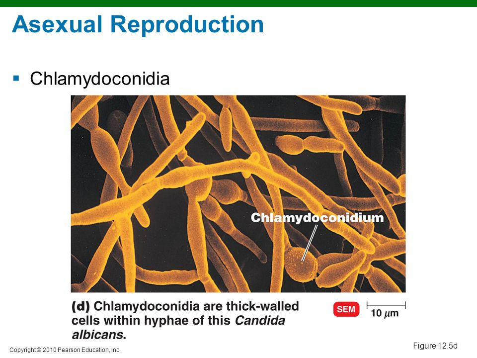 Asexual Reproduction Chlamydoconidia Figure 12.5d