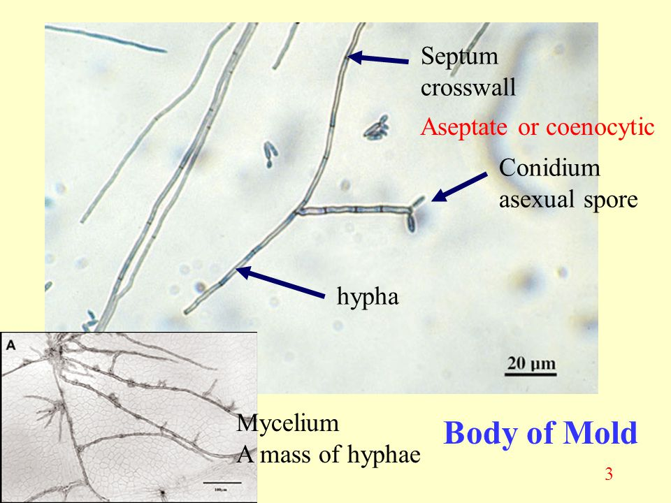 Body of Mold Septum crosswall Aseptate or coenocytic Conidium