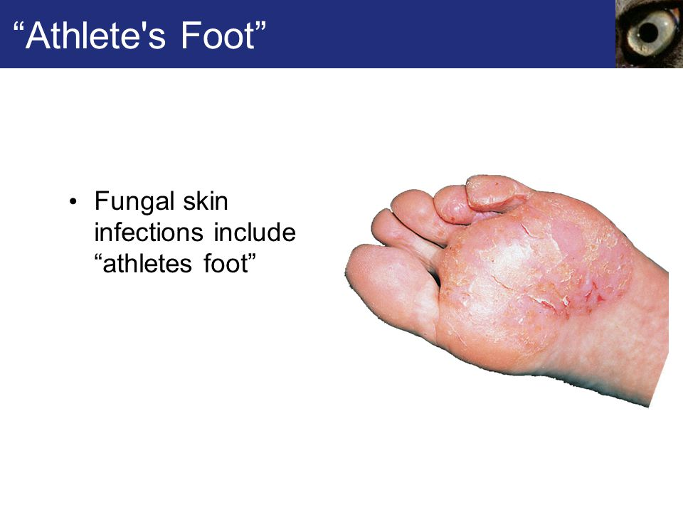 Athlete s Foot Fungal skin infections include athletes foot