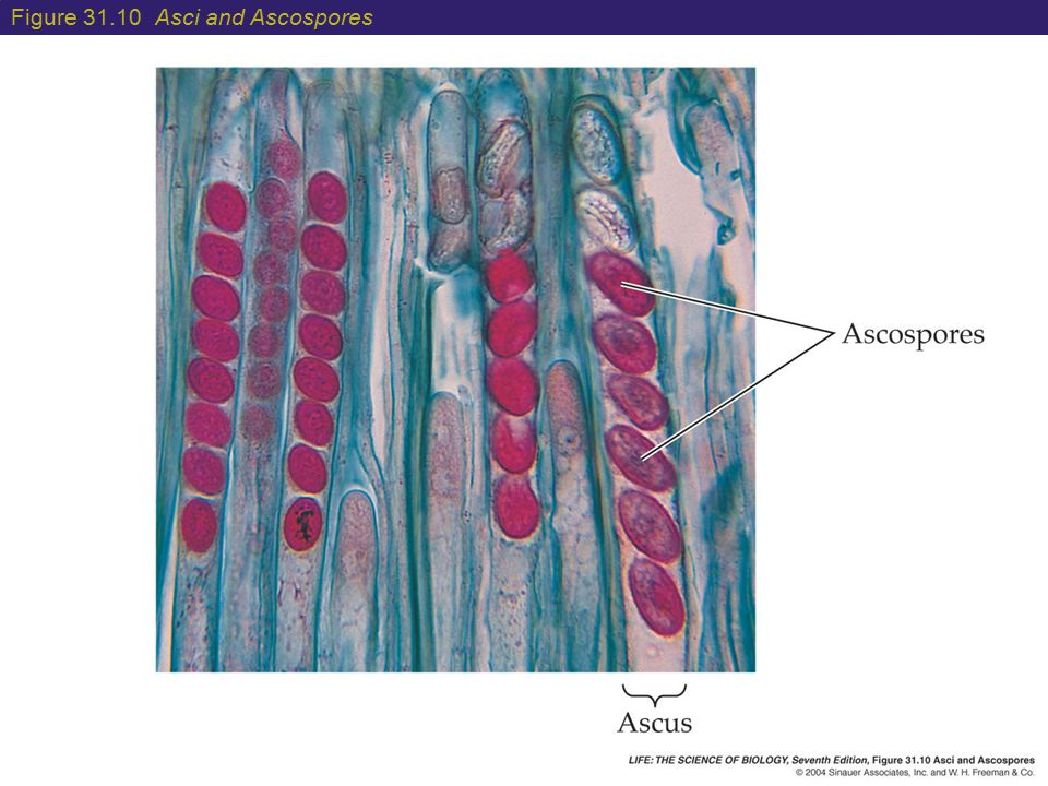 Figure 31.10 Asci and Ascospores