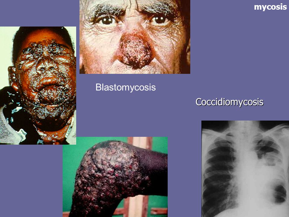 mycosis Blastomycosis Coccidiomycosis