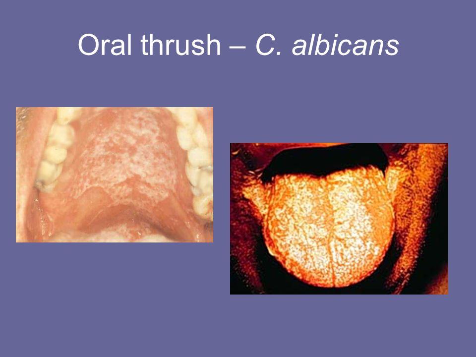 Oral thrush – C. albicans