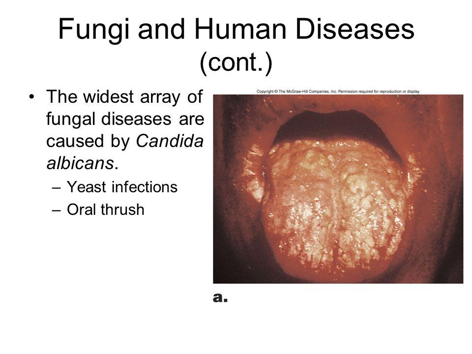 Fungi and Human Diseases (cont.)