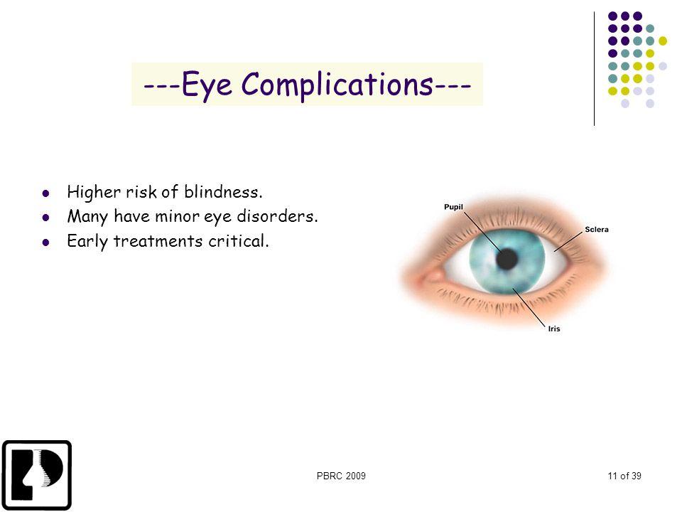 ---Eye Complications---