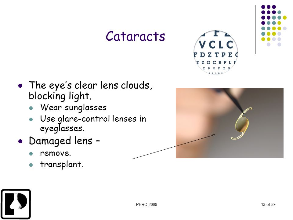 Cataracts Damaged lens – The eye's clear lens clouds, blocking light.