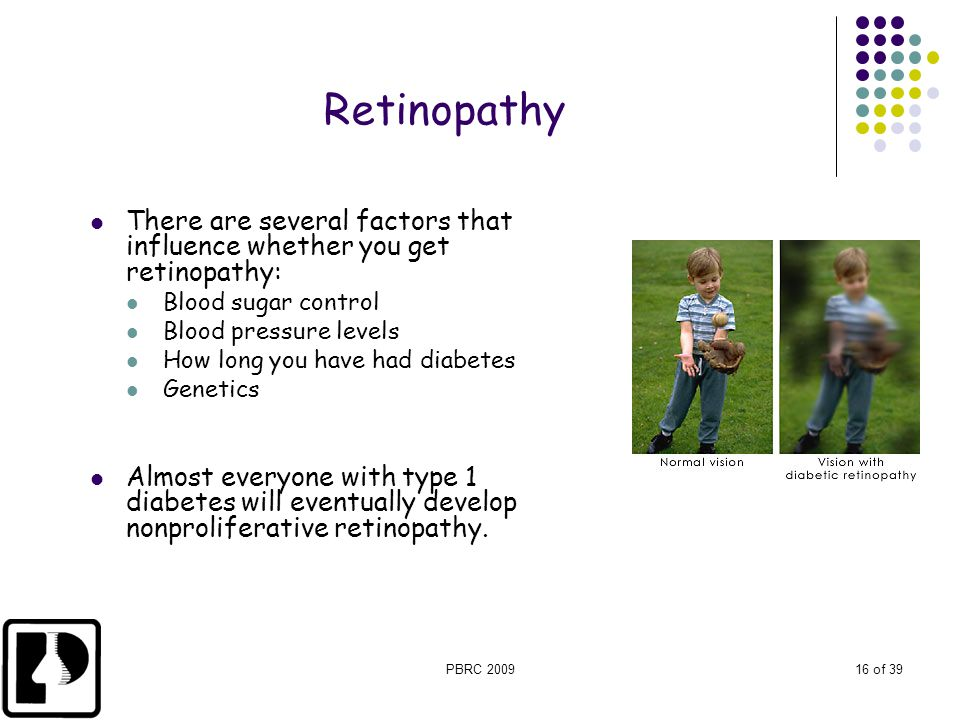 Retinopathy There are several factors that influence whether you get retinopathy: Blood sugar control.