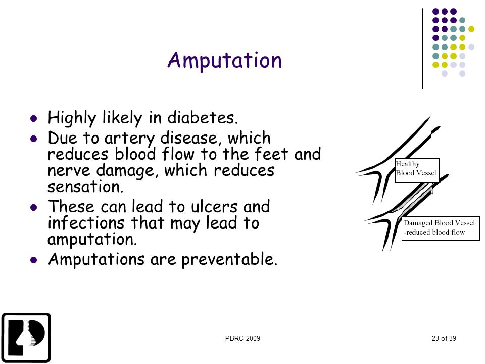 Amputation Highly likely in diabetes.