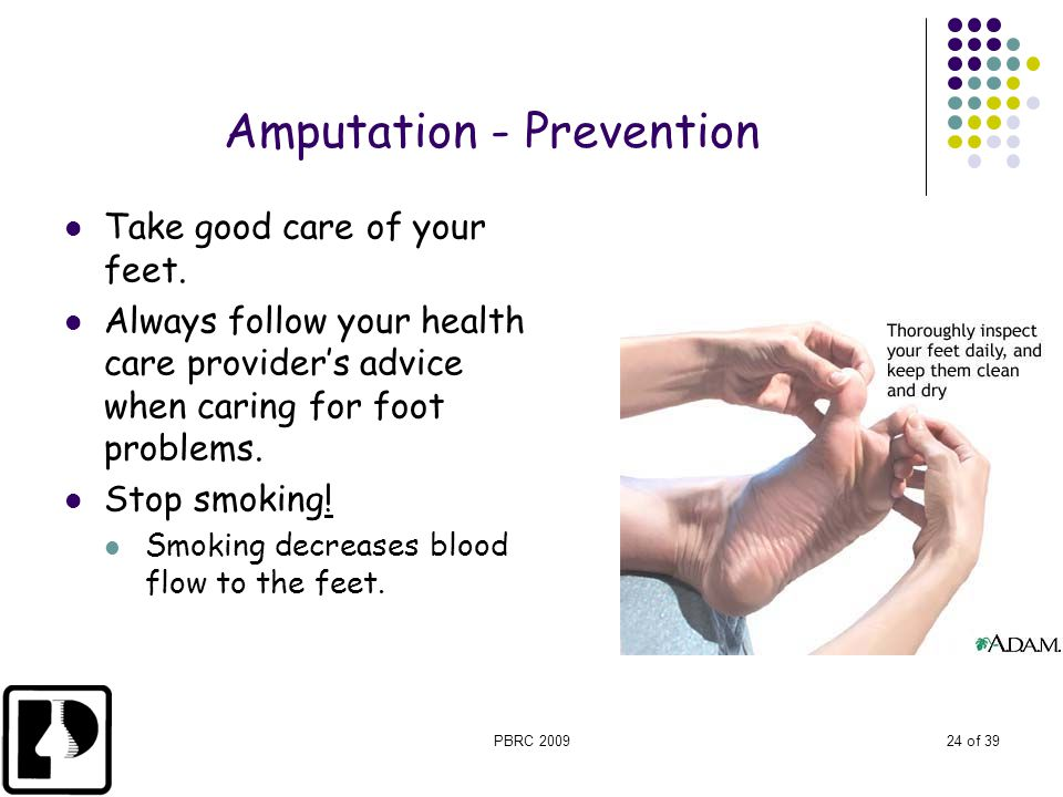 Amputation - Prevention