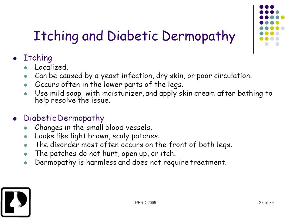 Itching and Diabetic Dermopathy