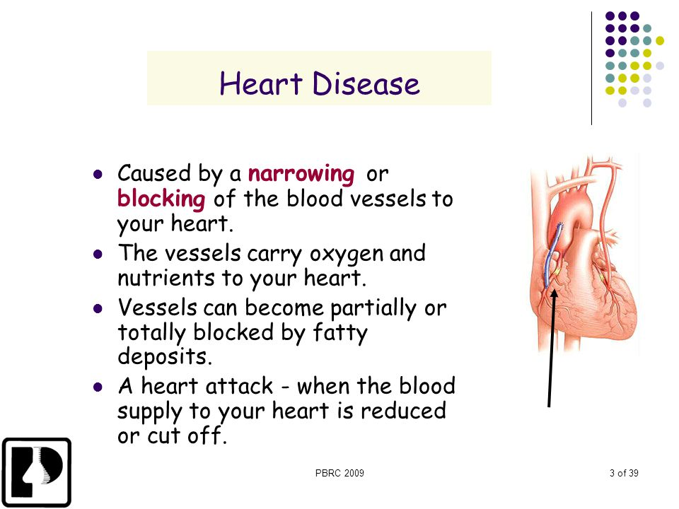 Heart Disease Caused by a narrowing or blocking of the blood vessels to your heart. The vessels carry oxygen and nutrients to your heart.