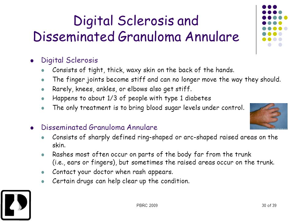 Digital Sclerosis and Disseminated Granuloma Annulare