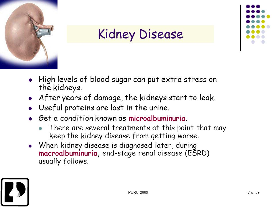 Kidney Disease High levels of blood sugar can put extra stress on the kidneys. After years of damage, the kidneys start to leak.