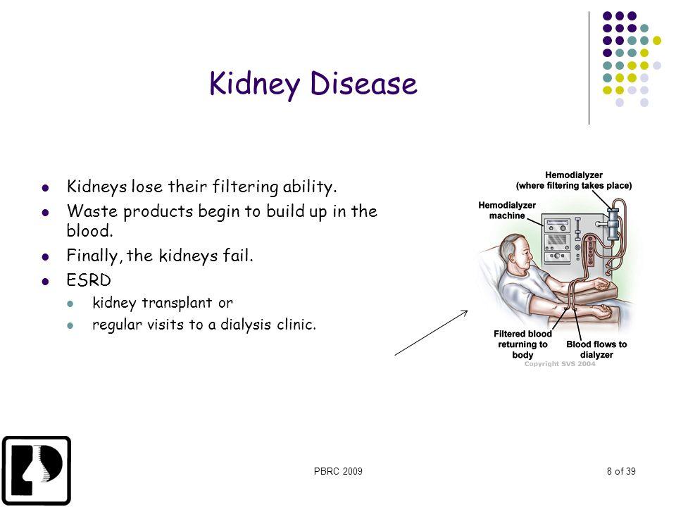 Kidney Disease Kidneys lose their filtering ability.