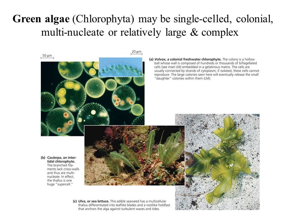 Green algae (Chlorophyta) may be single-celled, colonial,