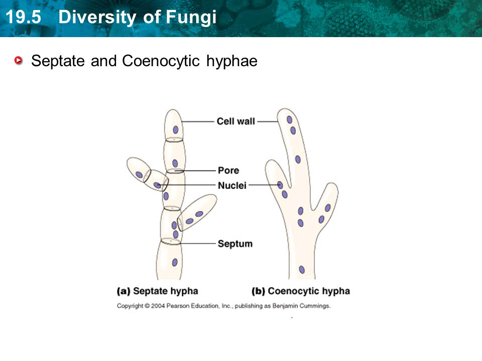 Septate and Coenocytic hyphae