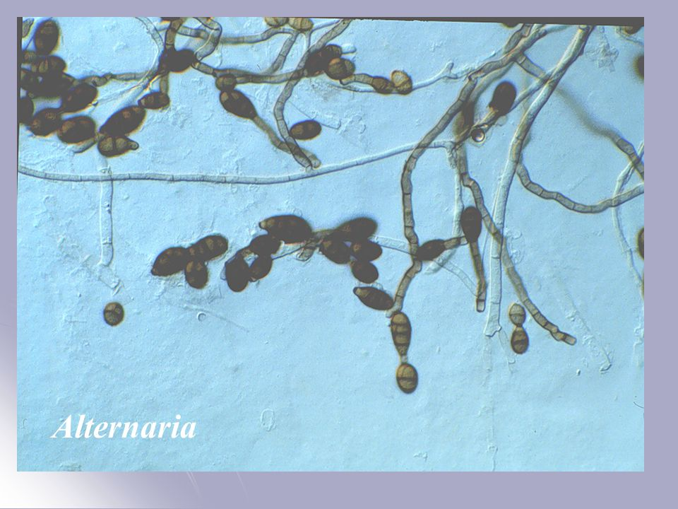 Alternaria conidiogenous cells and conidia