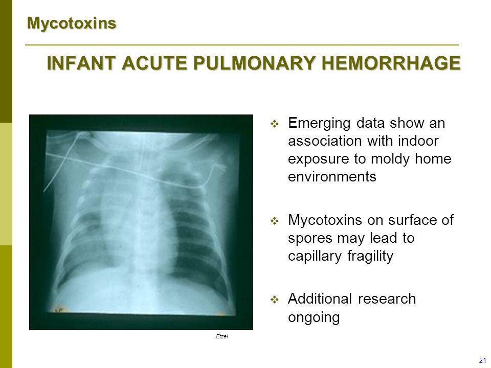 INFANT ACUTE PULMONARY HEMORRHAGE