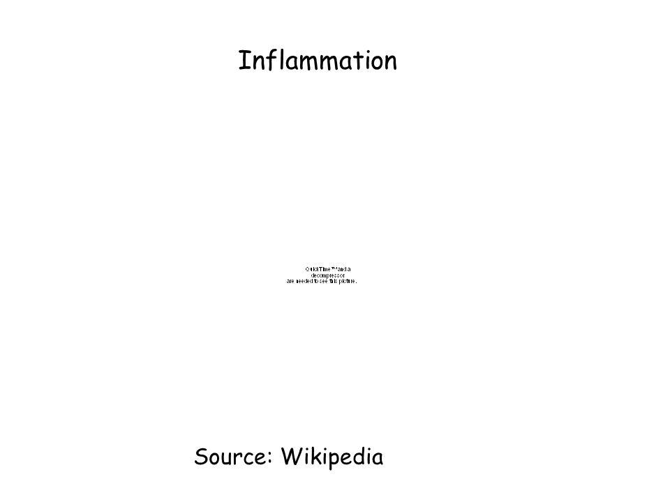 Inflammation Source: Wikipedia