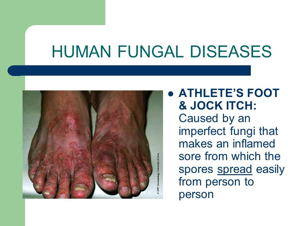 HUMAN FUNGAL DISEASES