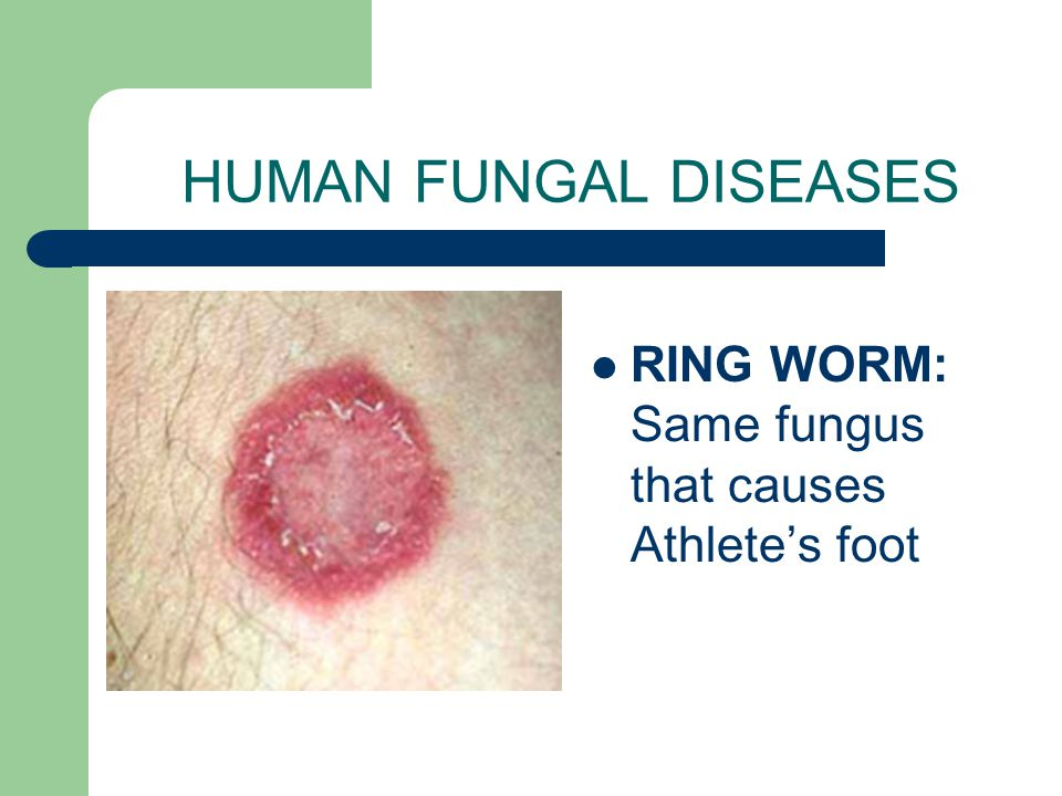 HUMAN FUNGAL DISEASES RING WORM: Same fungus that causes Athlete's foot