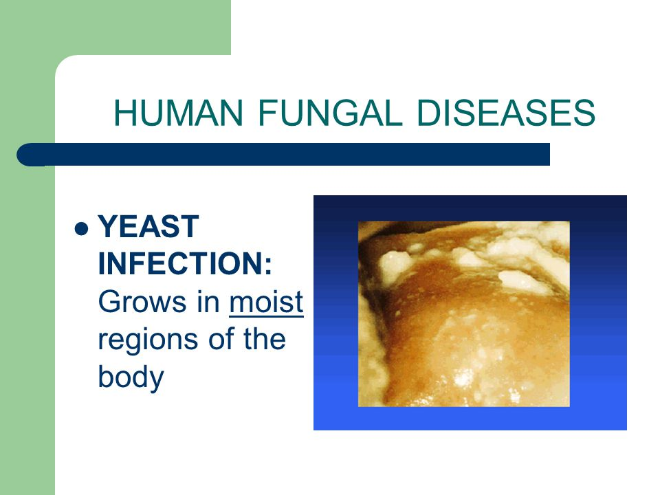 HUMAN FUNGAL DISEASES YEAST INFECTION: Grows in moist regions of the body