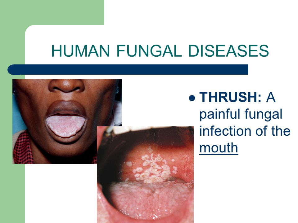 HUMAN FUNGAL DISEASES THRUSH: A painful fungal infection of the mouth