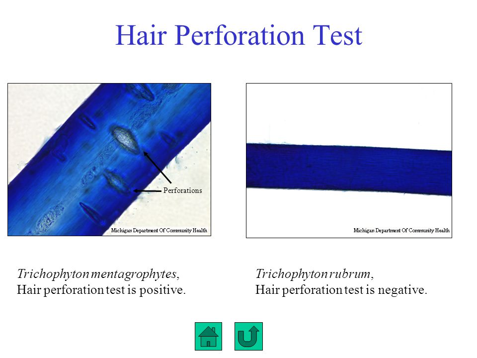 Hair Perforation Test Perforations. Trichophyton mentagrophytes, Hair perforation test is positive.