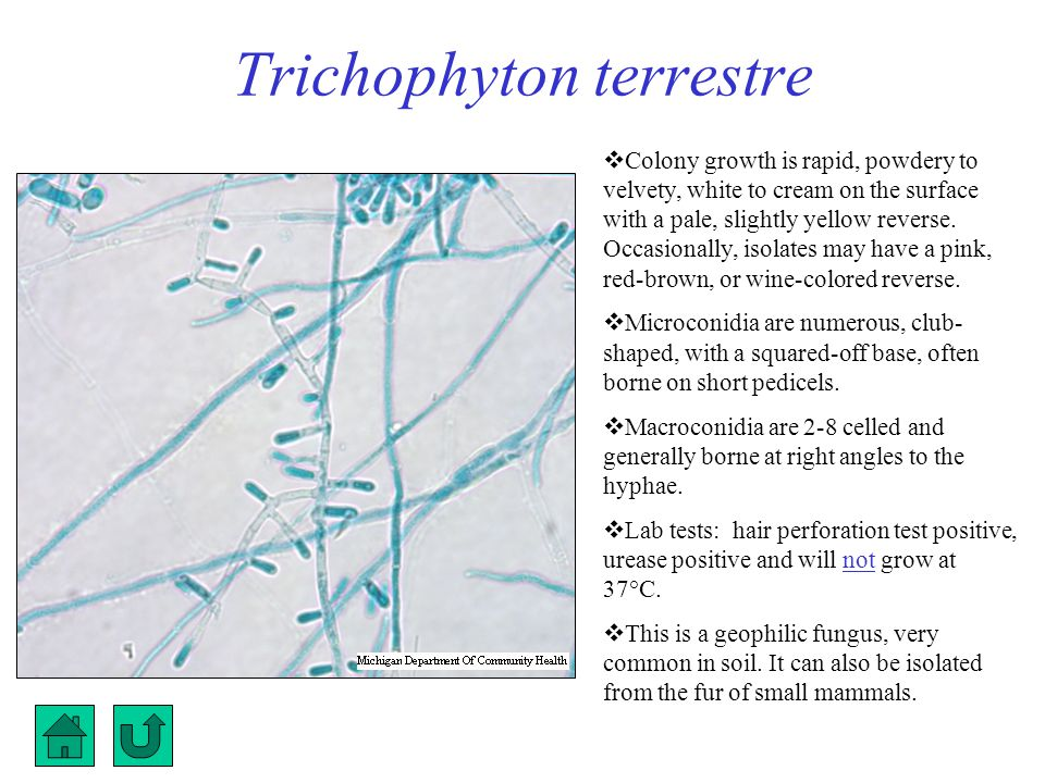 Trichophyton terrestre