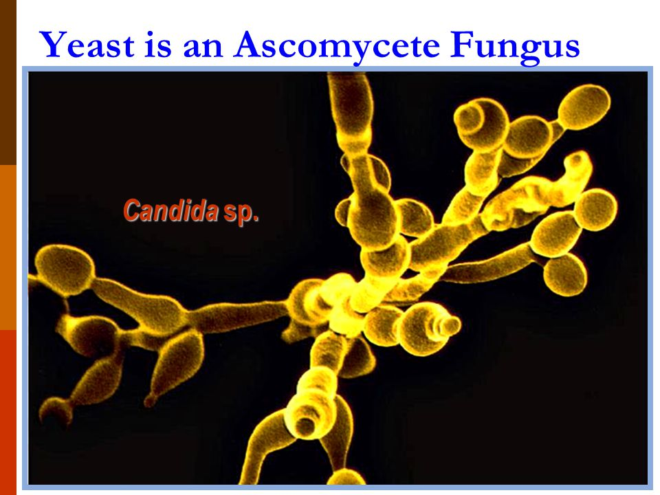 Yeast is an Ascomycete Fungus