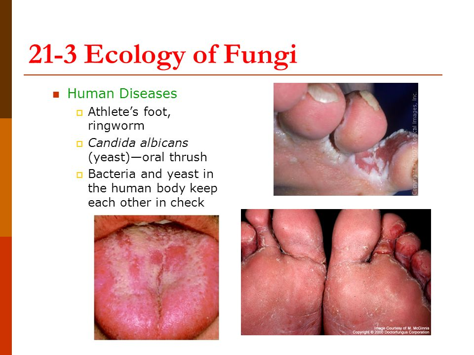 21-3 Ecology of Fungi Human Diseases Athlete's foot, ringworm
