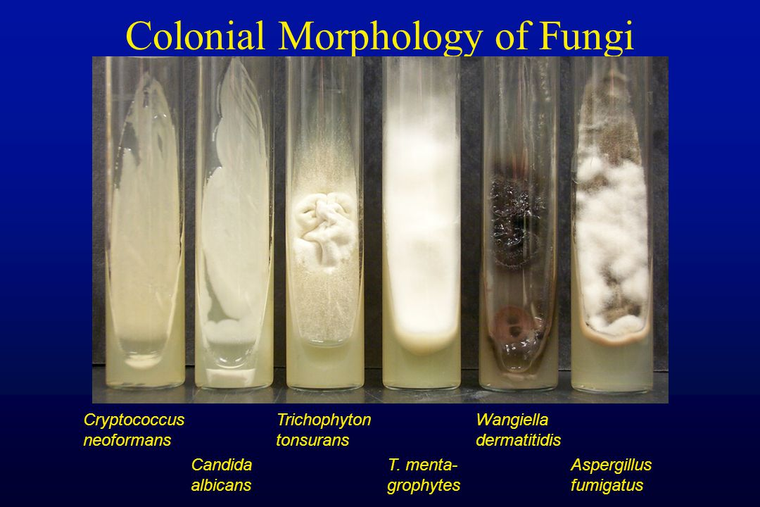 Colonial Morphology of Fungi