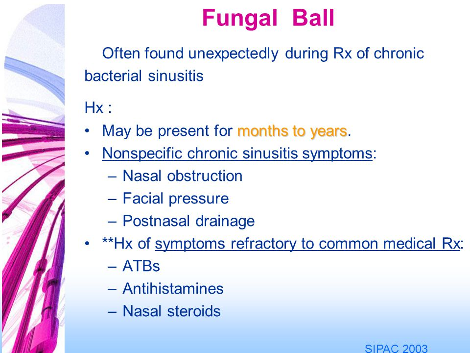 Fungal Ball Often found unexpectedly during Rx of chronic