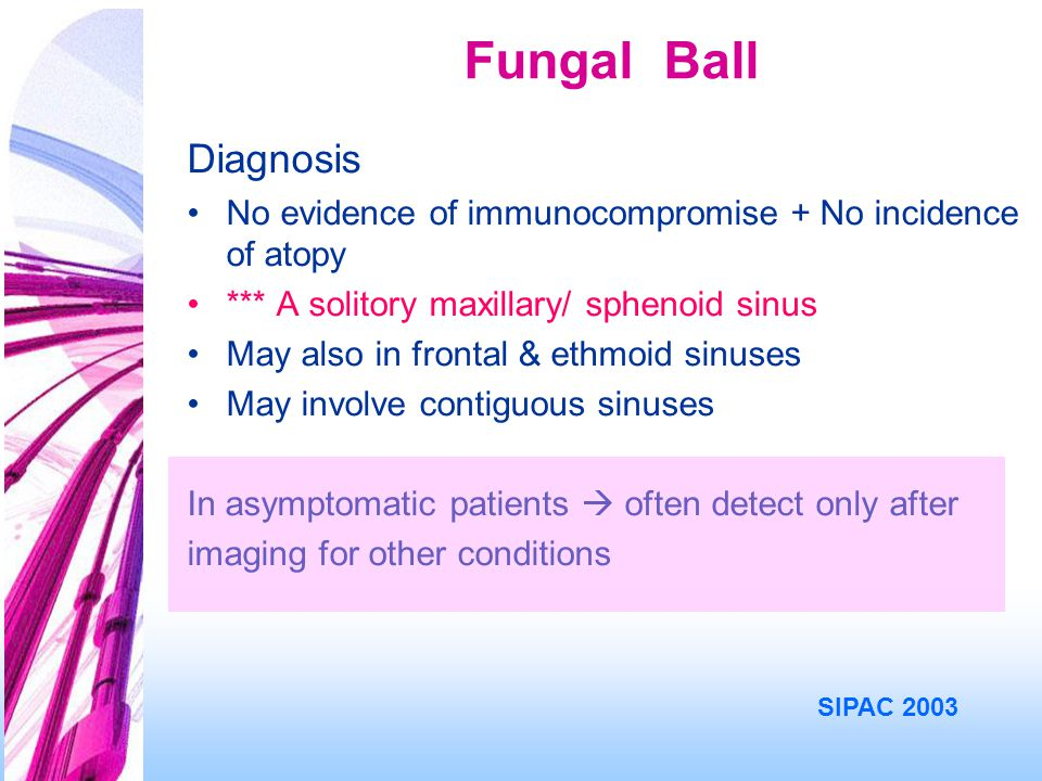 Fungal Ball Diagnosis. No evidence of immunocompromise + No incidence of atopy. *** A solitory maxillary/ sphenoid sinus.