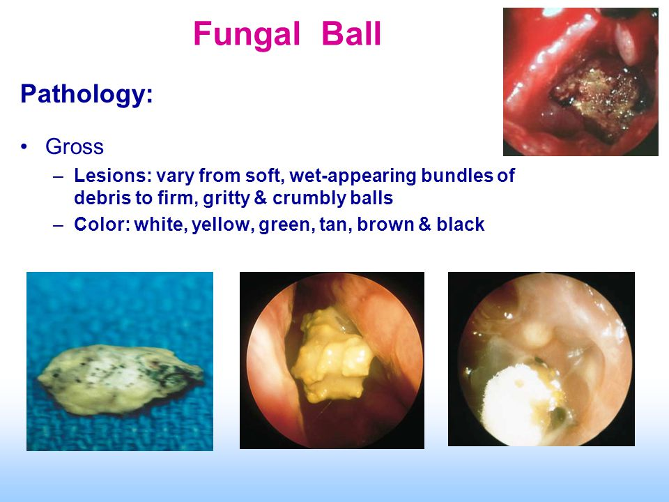 Fungal Ball Pathology: Gross