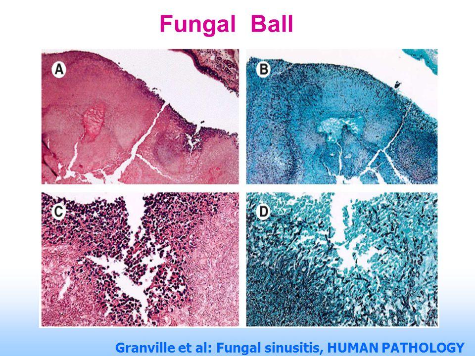 Fungal Ball
